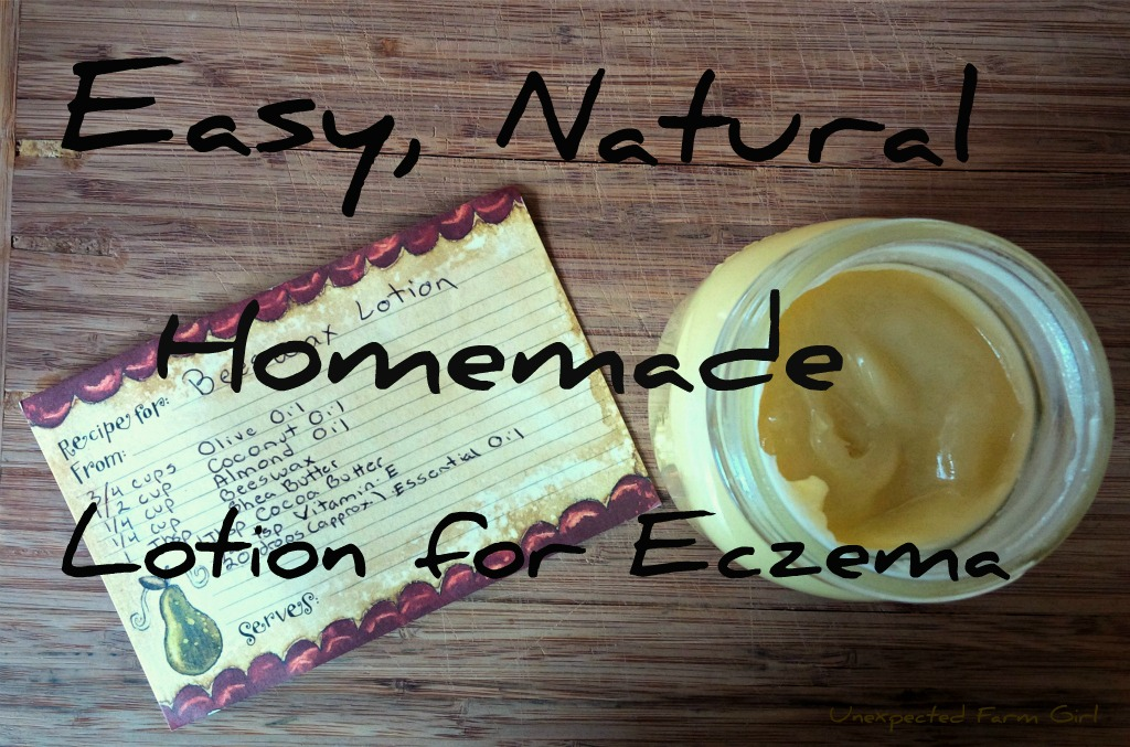 Easy, Natural Homemade Lotion for Eczema