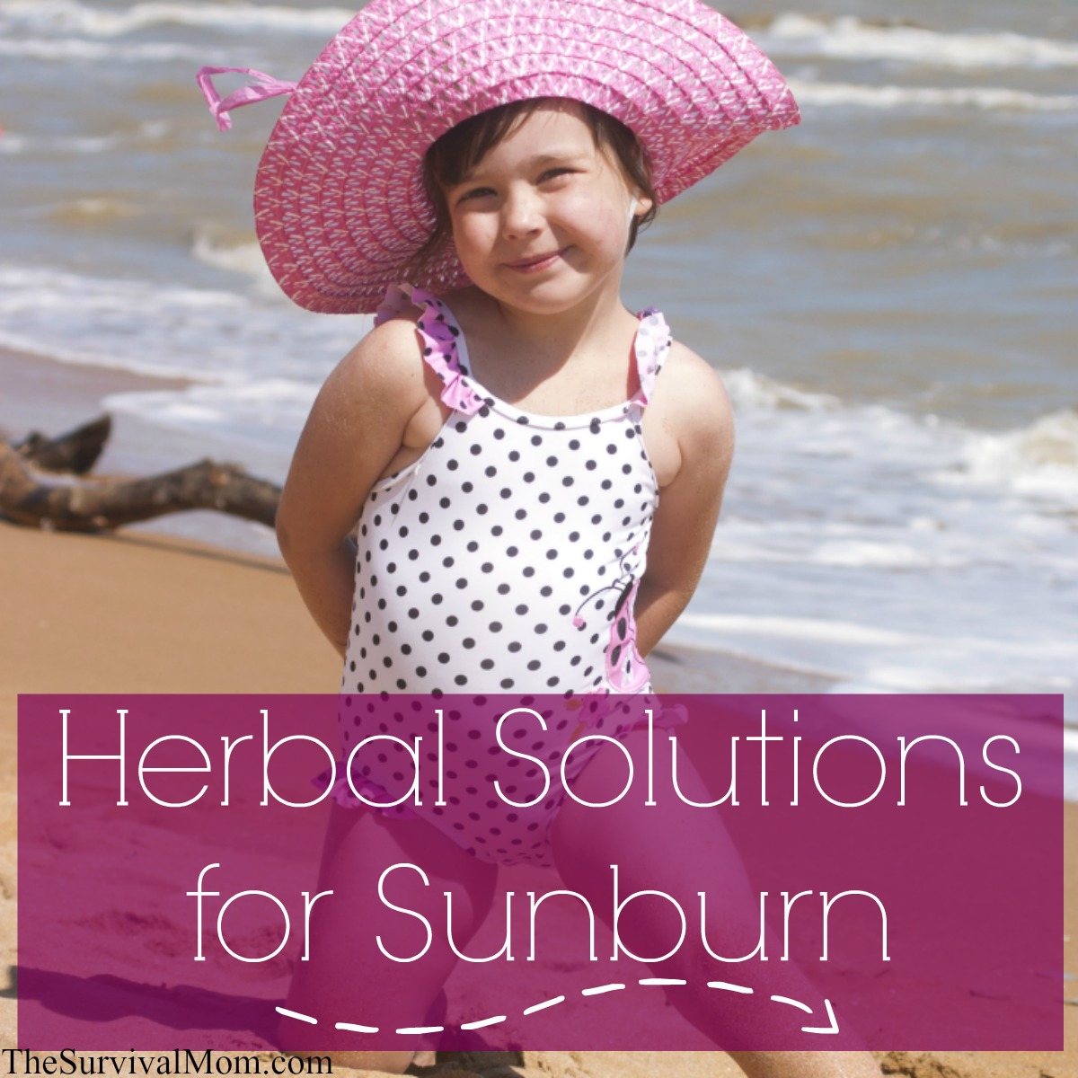 herbal sunburn remedies